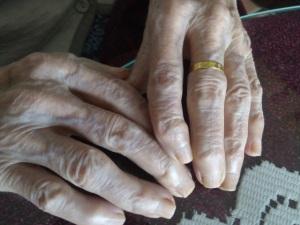 manos torcidas